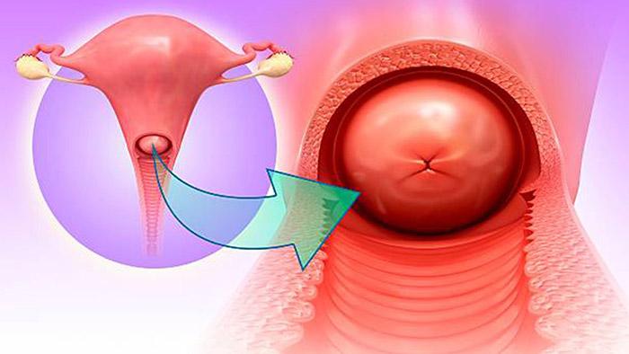 Bệnh viêm cổ tử cung ở phụ nữ