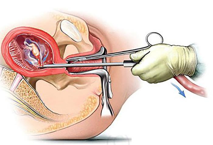 Hình thức phá thai ngoại khoa dùng kẹp nắp thai hoặc hút thai chan không